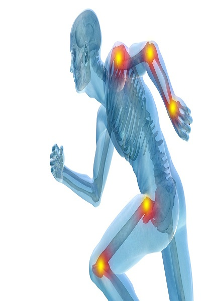 Body Joints Fracture